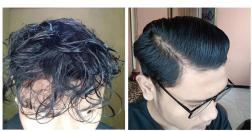 """gimana gan rambutku? efeknya ampe akar rambutt"""